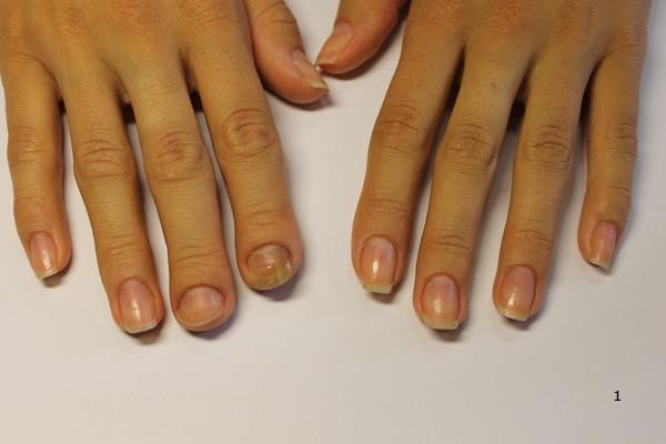 Как из некрасивых ногтей сделать красивые фото