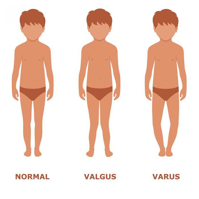 ac638a324 Вальгусная и варусная деформация: симптомы и лечение